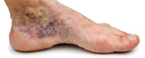 Stopa cukrzycowa Zespół stopy cukrzycowej