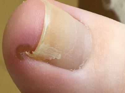 bolące wrastające paznokcie Zielona Góra Sulechów