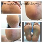 stopy pedicure specjalistyczny pedicure #Sulechów #Zielona Góra cena